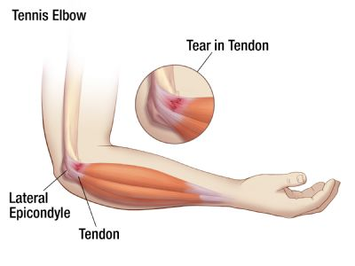TennisElbow1 Can Acupuncture Successfully Treat Tennis & Golfers Elbow?