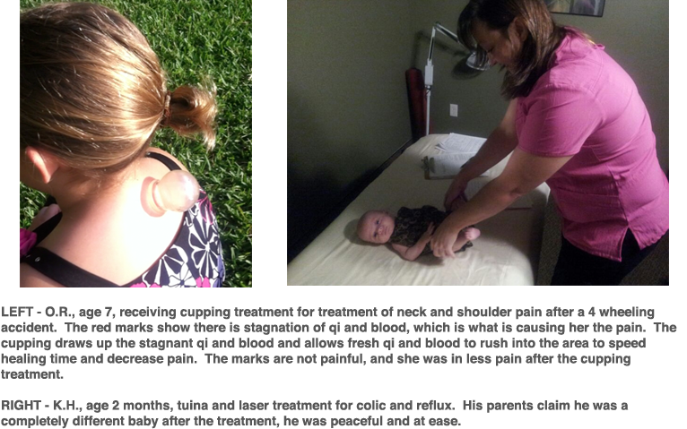 Pediatric Acupuncture